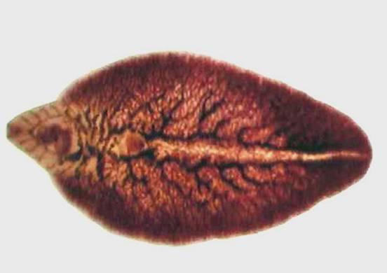 05、肝吸蟲病﹝Clonorchiasis﹞:Liver-fluke-parasite.jpg