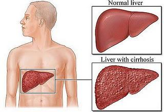 第11節 肝硬化﹝Cirrhosis_of_Liver﹞:liver-cirrhosis.jpg