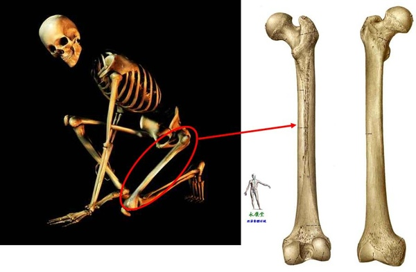 11_我們的骨頭~下肢骨~股骨.JPG