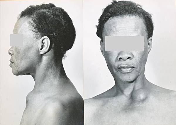 瘰癧﹝scrofula﹞:cervical-node