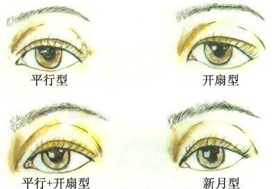四類雙眼皮