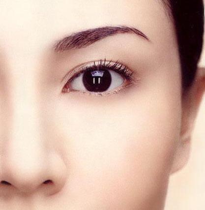 平行型雙眼皮1