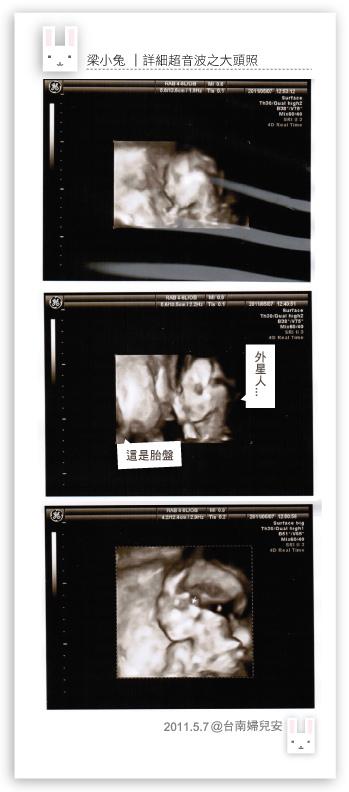 2011.5.7詳細超音波