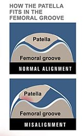 patella shift