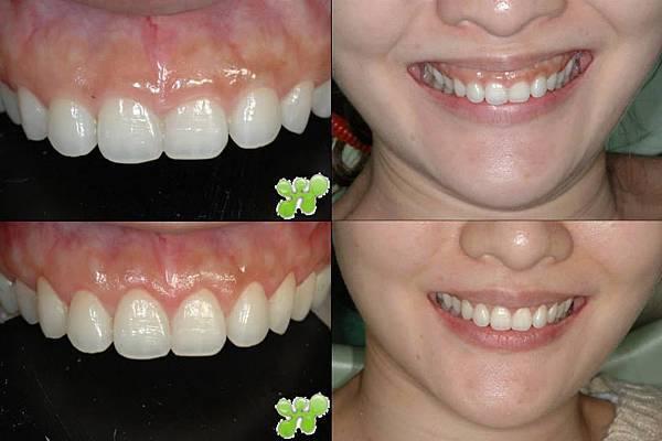 怡豪牙醫診所水雷射牙齦整形