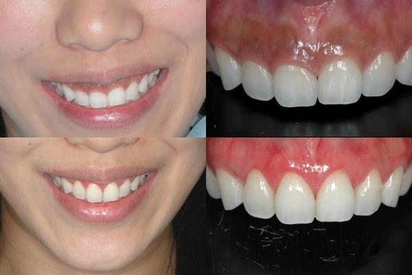 水雷射牙齦整形002