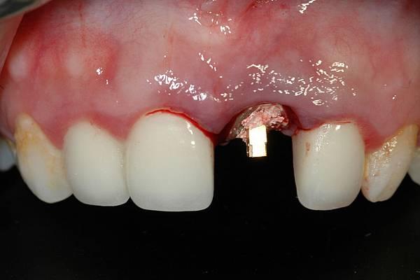 即刻植牙即刻修復