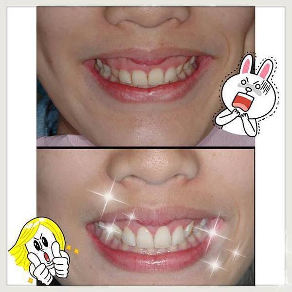 水雷射牙齦整型