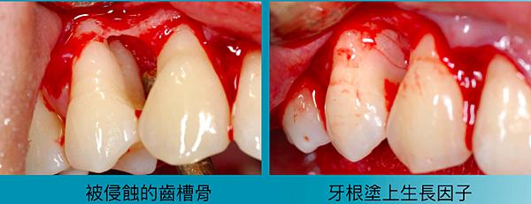 牙周組織再生01