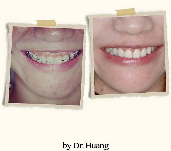 矯正後水雷射牙齦整型
