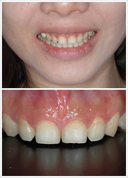 水雷射牙齦整形術前