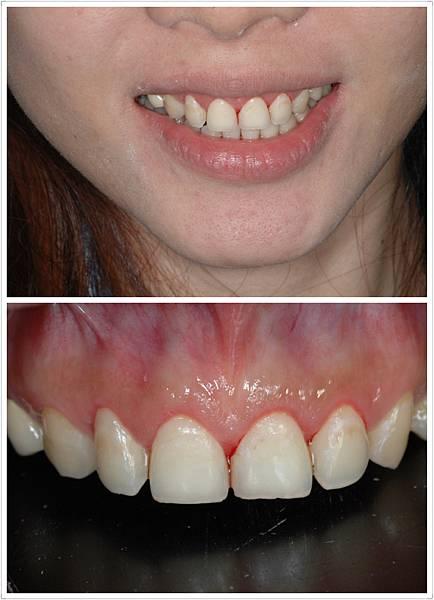 水鐳射牙齦整形術後