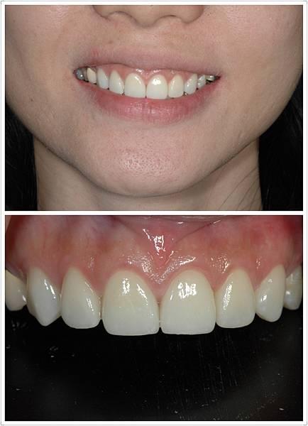 水鐳射牙齦整形美白貼片
