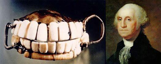 華盛頓全口假牙