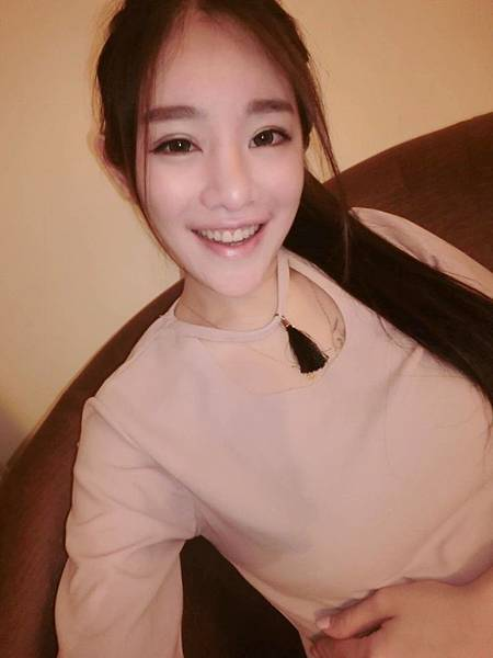 築夢美少女 沐妍 水雷射牙齦整形心得分享01