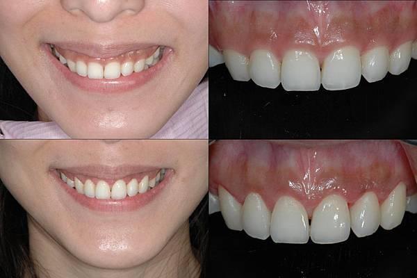水雷射牙齦整型張