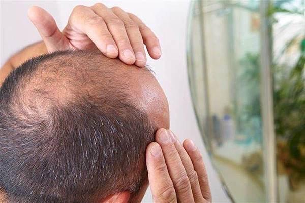 你也有頭髮掉不停的困擾嗎?掉髮危機大做戰看過來!