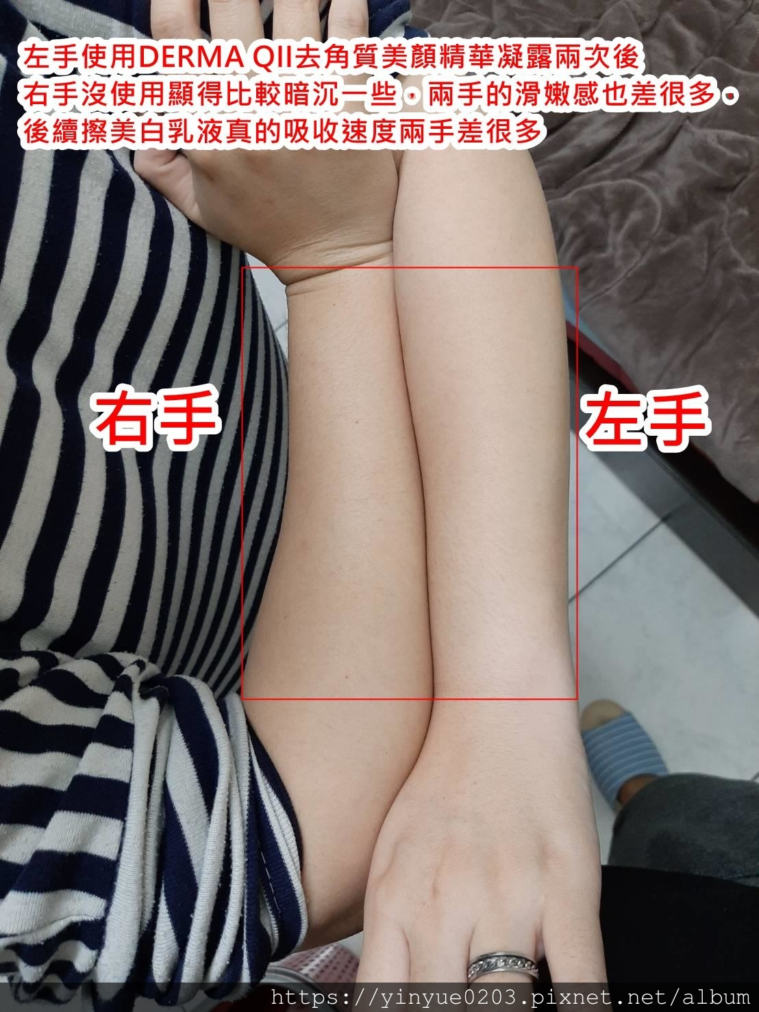 手臂去角質差異