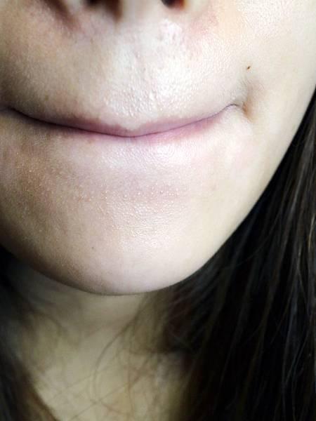 醫洗臉/飛悅皮膚科/脈衝光/除痘痘/除粉刺