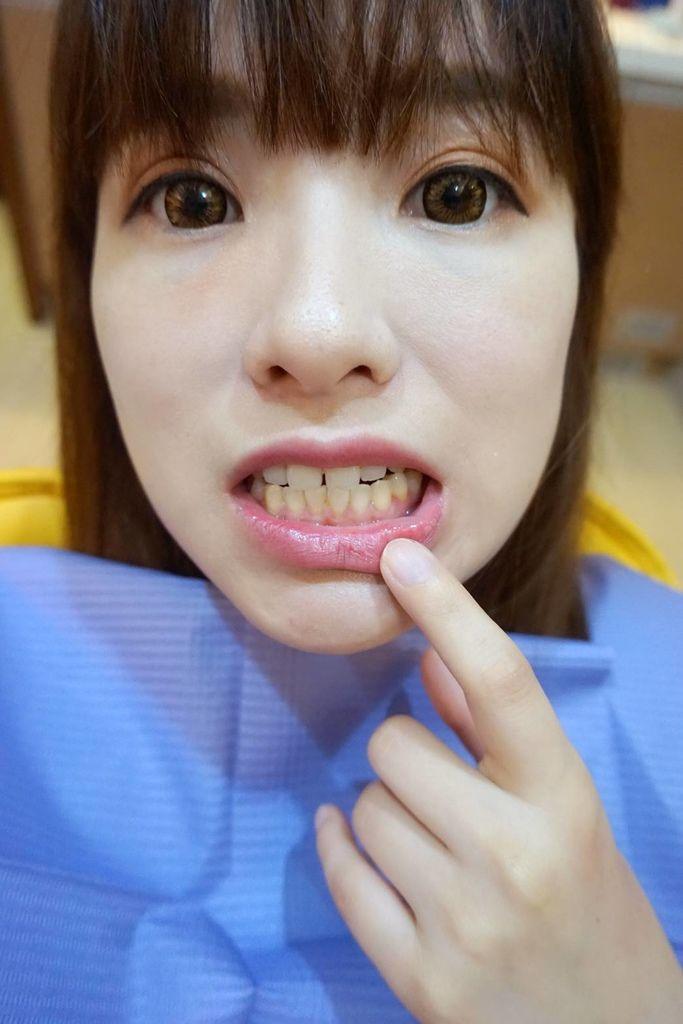 兒童牙醫/牙齒冷光美白診所推薦→怡登維美牙醫診所林葳醫師|6年牙醫專業訓練!