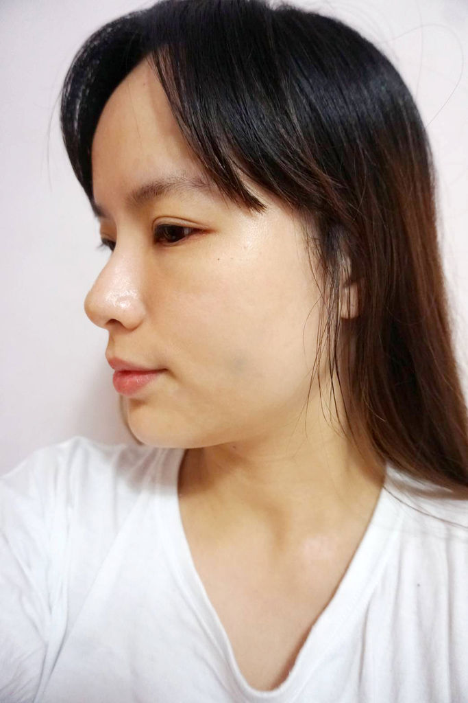 皮醫師診所/臉部埋線拉提/魔幻極光