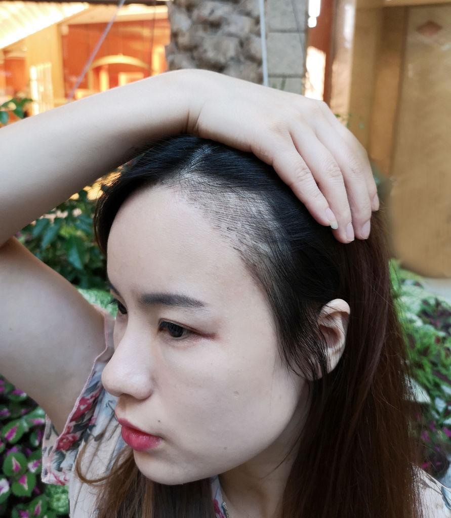 東區紋繡髮際線