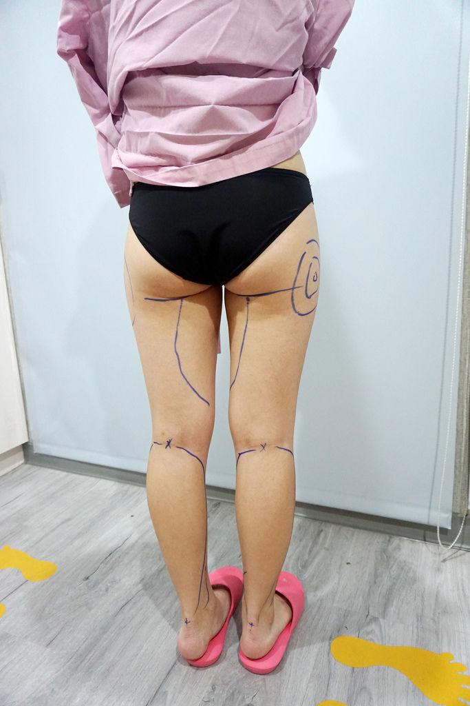 台北博恩妍醫美診所/小腿體雕抽脂