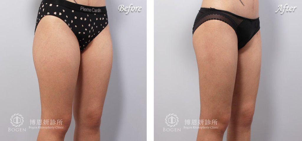 小腿體雕抽脂-博恩妍醫美診所*推薦李岳樺醫師