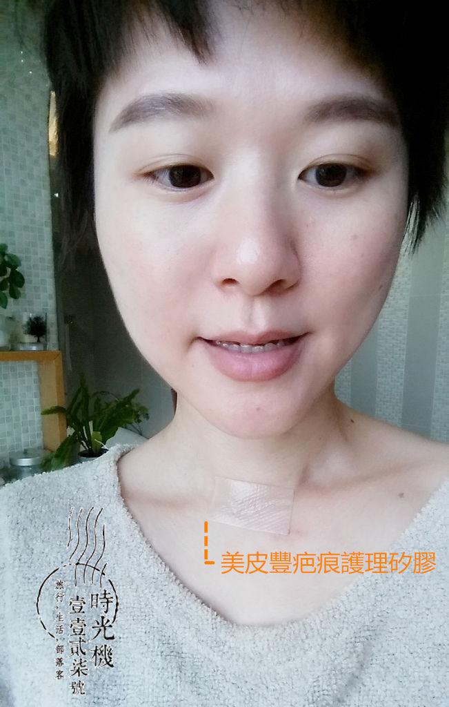 告別甲狀腺腫瘤 (16).jpg