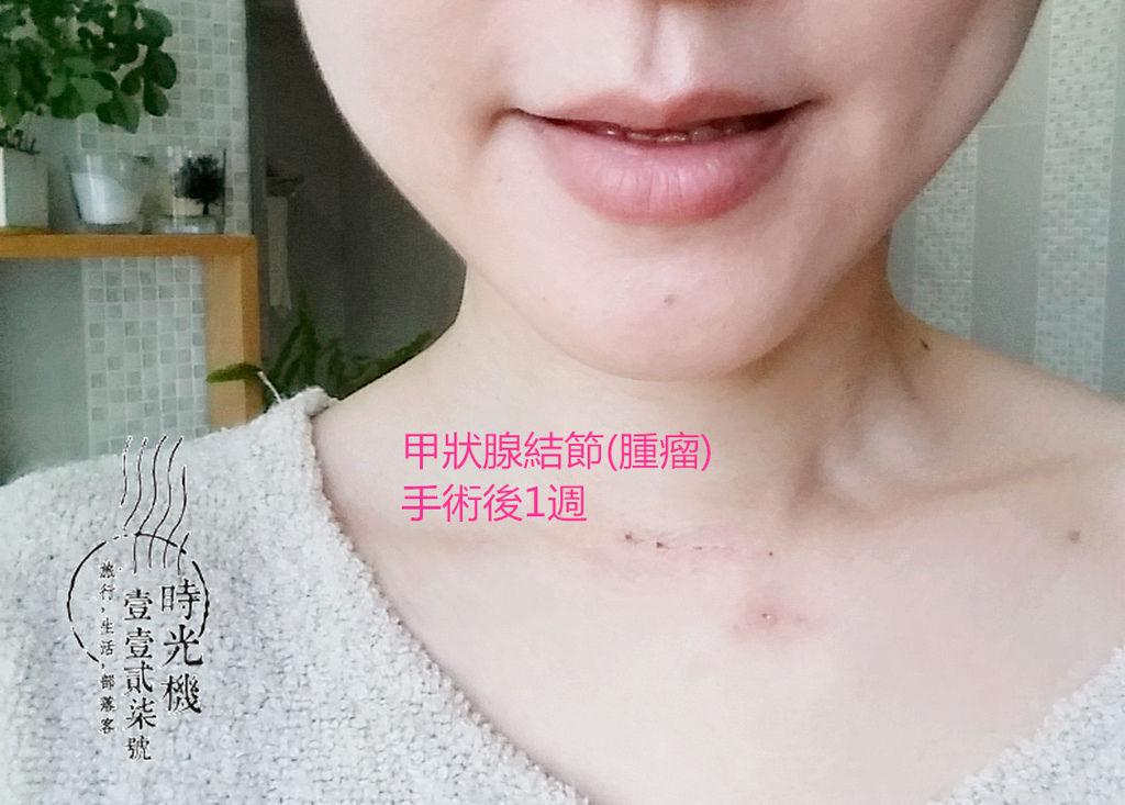 告別甲狀腺腫瘤 (35).jpg