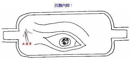 09-沉翳內障: