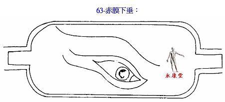 63-赤膜下垂: