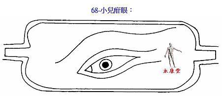 68-小兒疳眼: