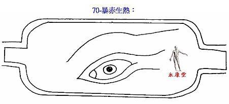 70-暴赤生熱: