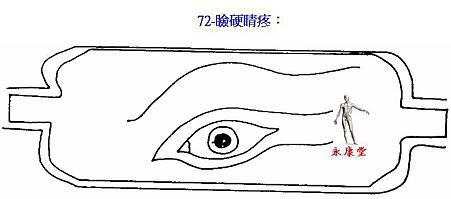 72-瞼硬睛疼: