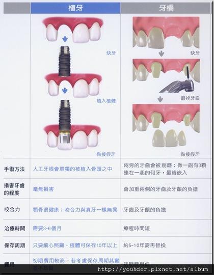 植牙和假牙的比較