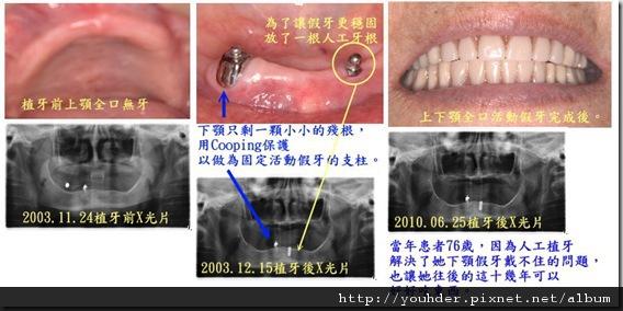 人工植牙1