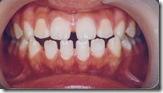 牙弓太寬牙齒.太小1jpg