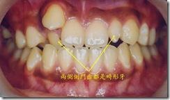先天畸形牙2