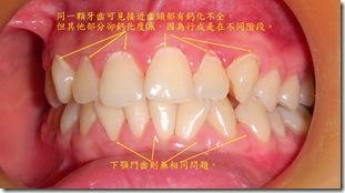 牙齒齒質好壞和形成階段的鈣化狀況有很大的關係jpg
