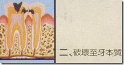 破壞至牙本質層