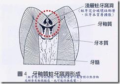 牙釉質牙本質蛀牙