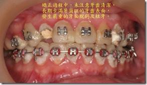 卡滿牙菌斑的牙齒表面
