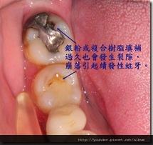 續發性蛀牙2