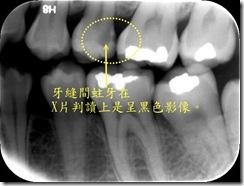 牙縫間蛀牙1