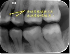 牙縫間的填補物內已發生續發性蛀牙1
