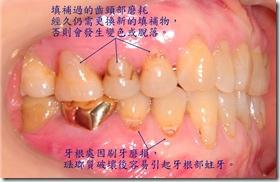 齒頸部磨耗、牙根部蛀牙1