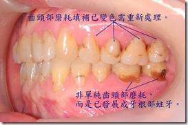 齒頸部磨耗、牙根部蛀牙