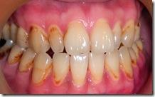 瀰漫性蛀牙初期