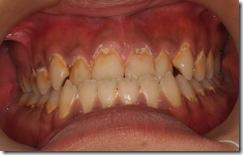 嚴重的瀰漫性性蛀牙1
